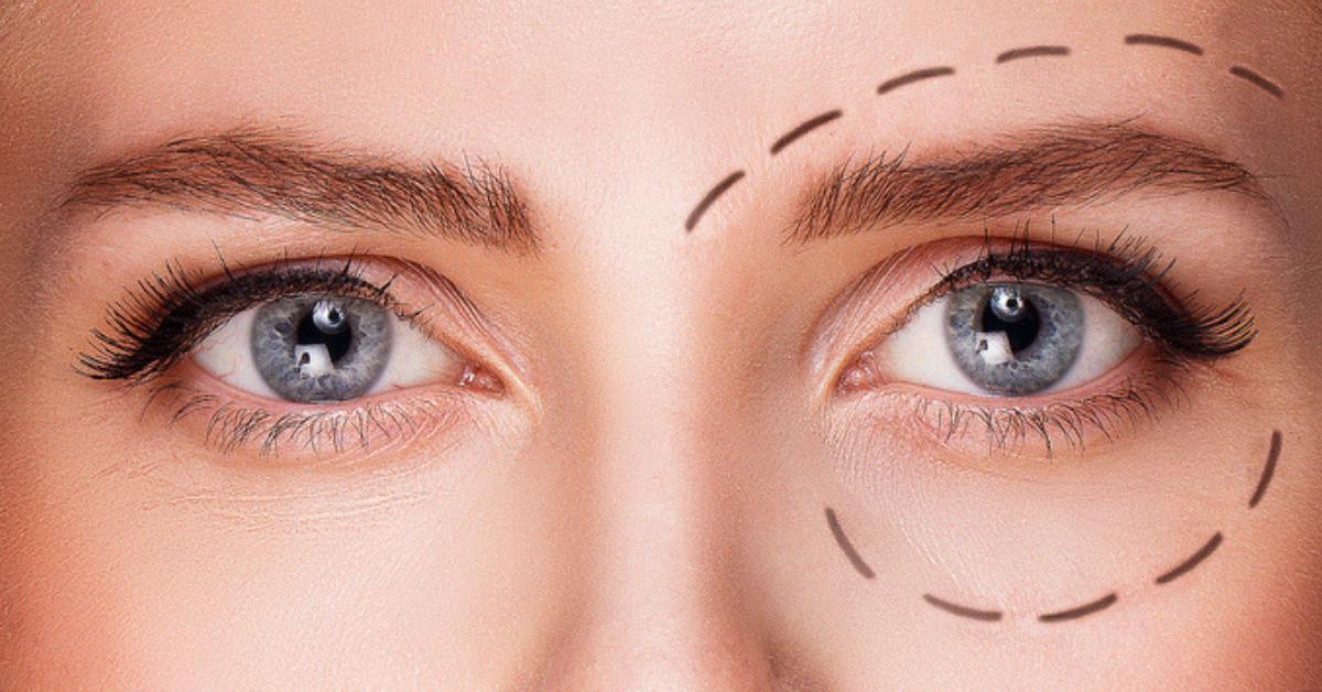 como-aplicar-el-contorno-de-ojos