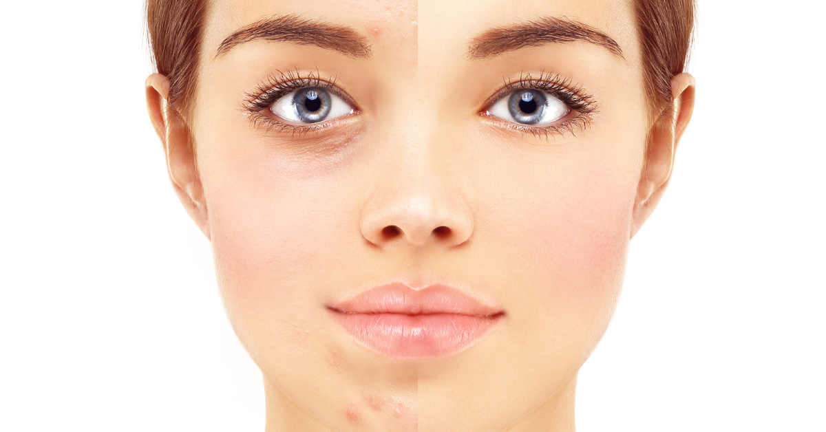 hidratacion-y-buenos-habitos-para-el-rosto